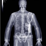 Traditional X-ray Image